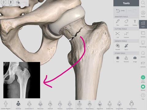 Complete Anatomy Platform 2020 iPadアプリ